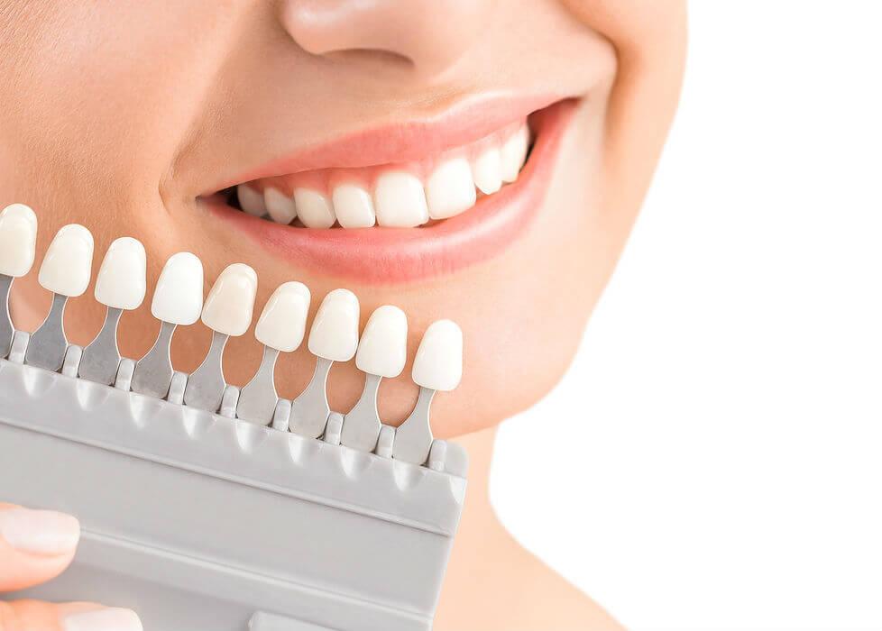 dentaltamayo-tratamiento-carillas-de-porcelana